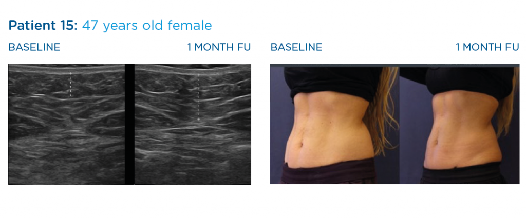 Case Studies | Pleasanton Abdomen Sculpting | Butt Lift Pleasanton